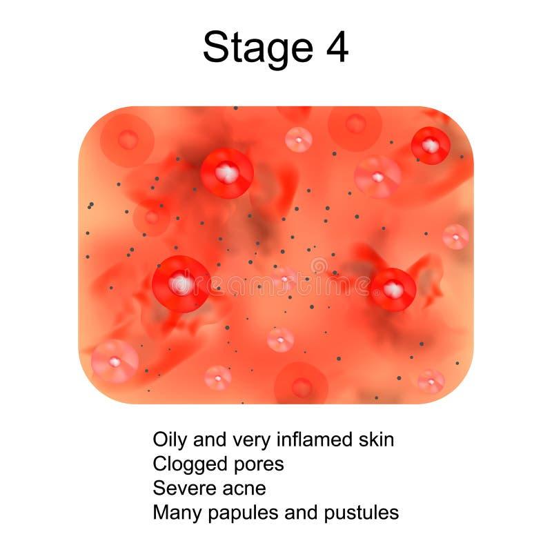 Étape 4 du développement de l'acné Peau enflammée avec les cicatrices, l'acné et les boutons La texture de la peau enflammée, et  illustration stock