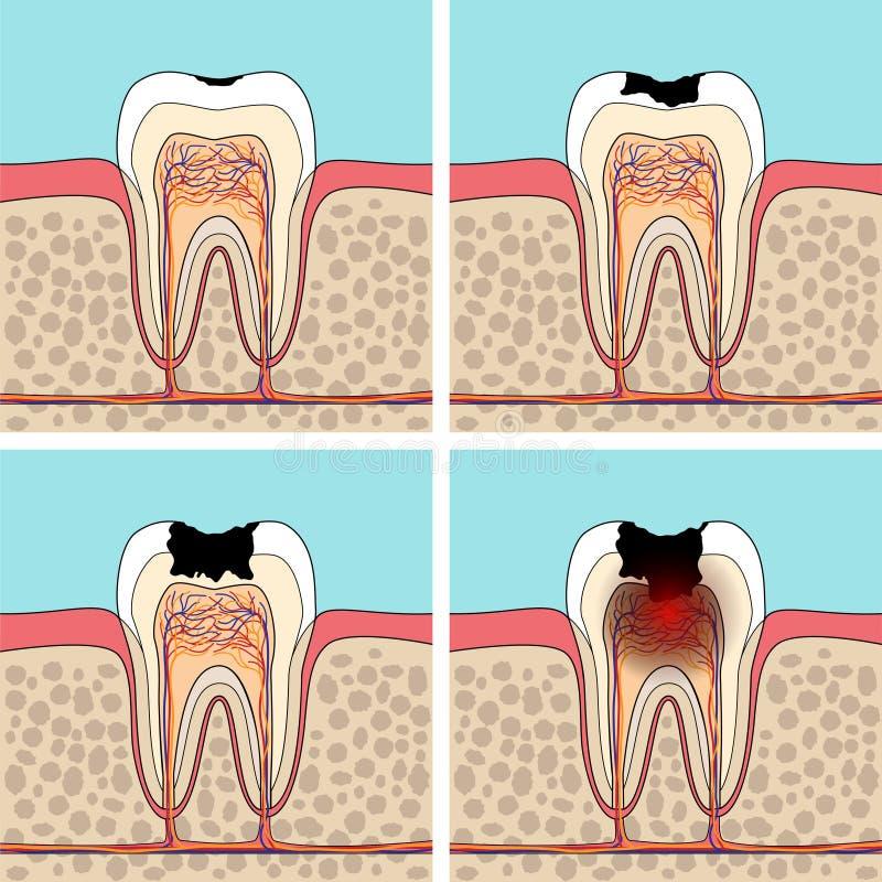 Étapes de carie dentaire illustration libre de droits