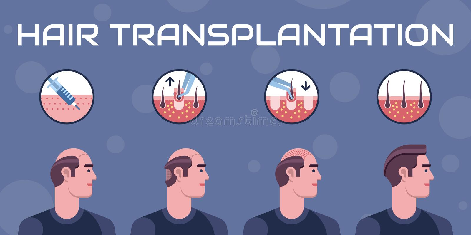 Étapes de transplantation de cheveux illustration libre de droits