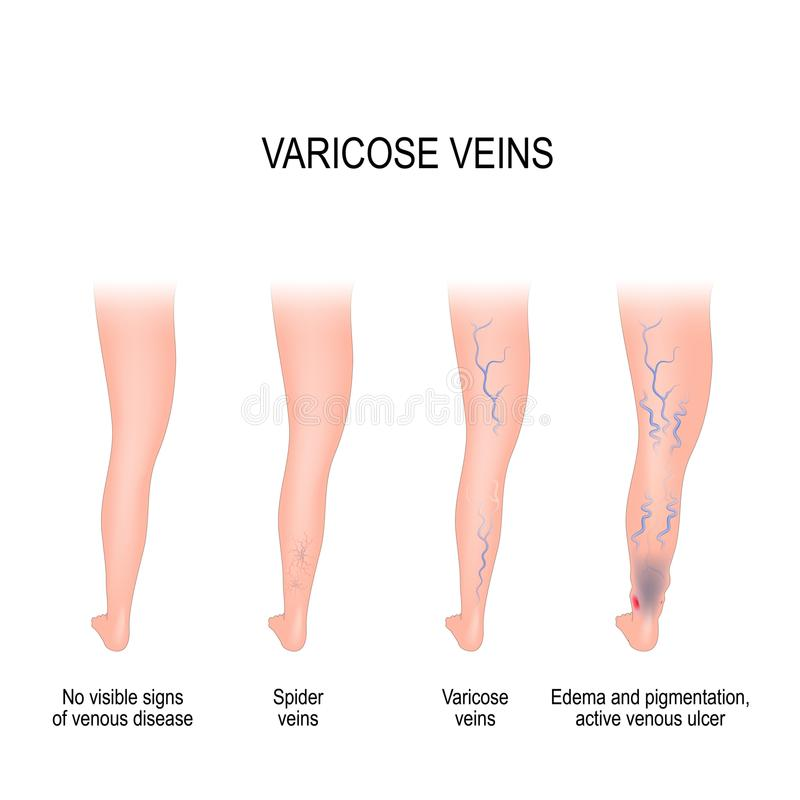 Étapes des veines variqueuses illustration stock