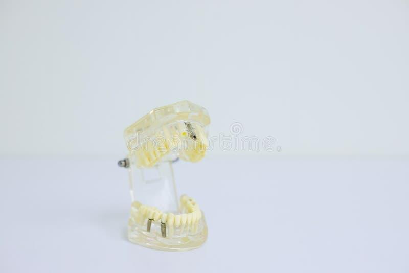 Étudiant dentaire d'art dentaire de dent apprenant le modèle de enseignement montrant des dents, des racines, des gommes, la mala photographie stock