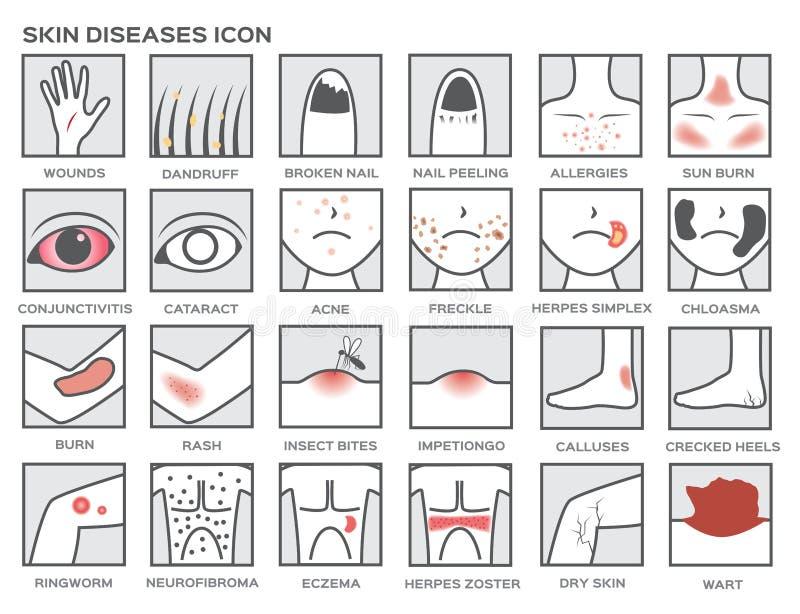 Ícone das doenças de pele ilustração stock