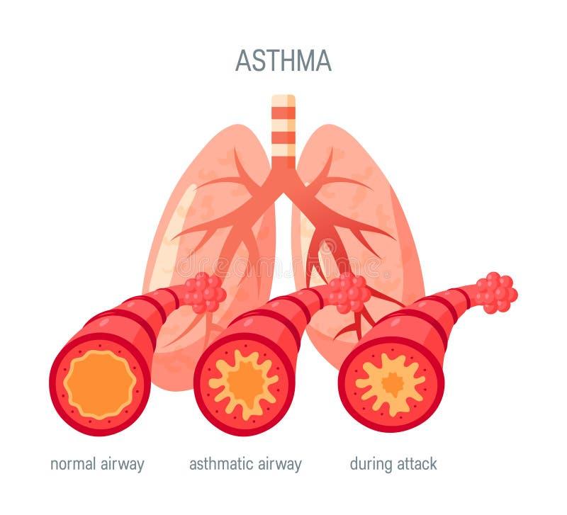 Ícone do vetor da doença da asma no estilo liso ilustração royalty free