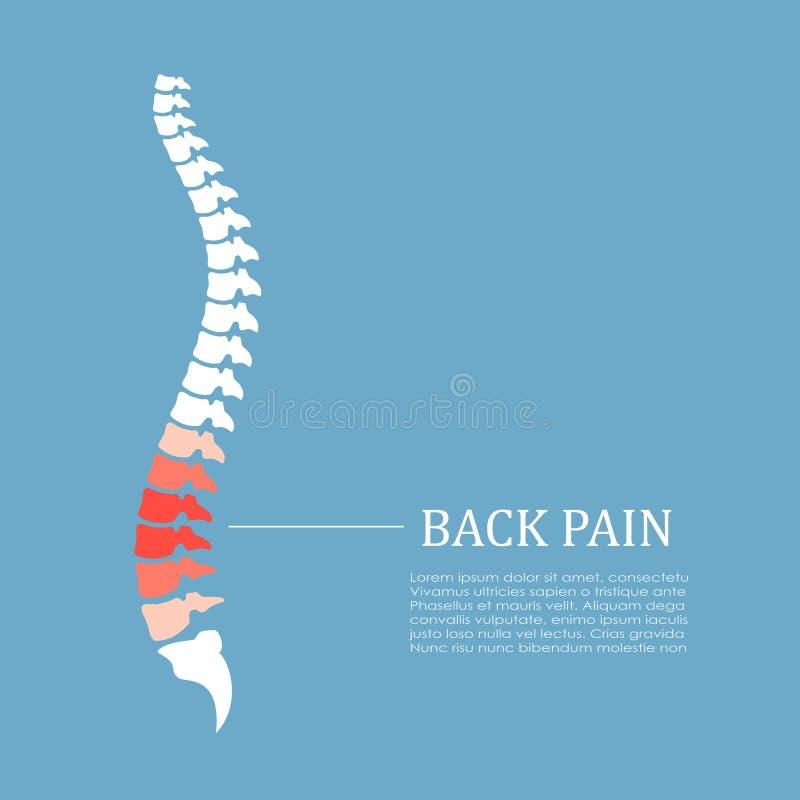Ícone do vetor da dor nas costas ilustração royalty free
