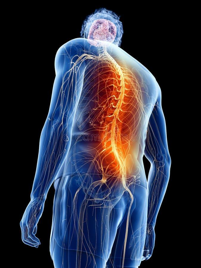 Ένα άτομο που έχει τον πόνο στην πλάτη ελεύθερη απεικόνιση δικαιώματος