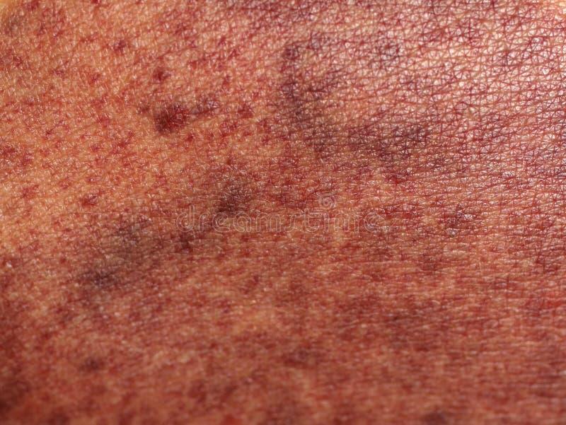 Ένα ίχνος στο δέρμα από το κενό μπορεί bruckner Μπορέστε να τρίψετε στοκ εικόνες