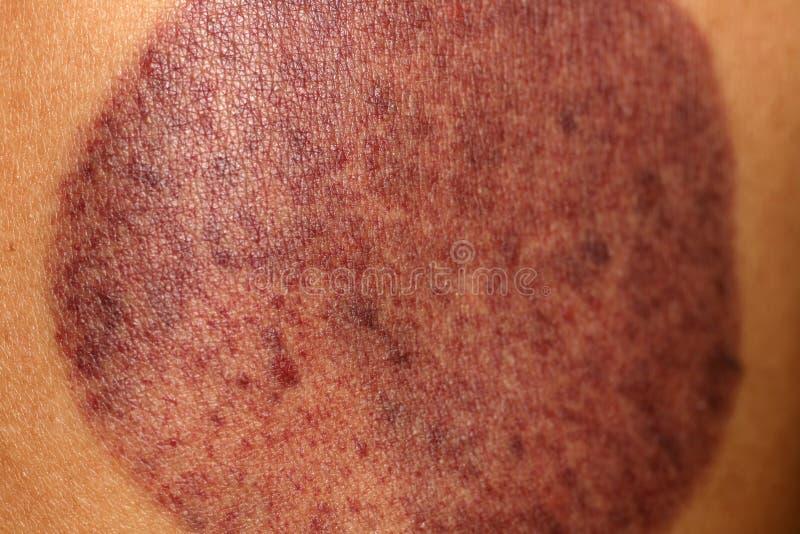Ένα ίχνος στο δέρμα από το κενό μπορεί bruckner Μπορέστε να τρίψετε στοκ φωτογραφία με δικαίωμα ελεύθερης χρήσης