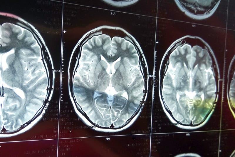 Ανίχνευση μαγνητικής αντήχησης του εγκεφάλου με το κρανίο Επικεφαλής ανίχνευση MRI στο σκοτεινό υπόβαθρο στοκ εικόνες