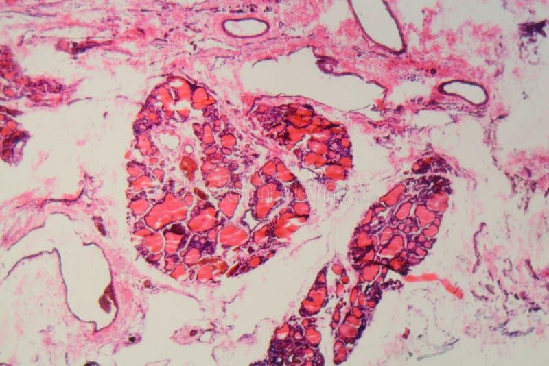 Ανθρώπινος θυροειδής αδένας με goiter που προκαλείται από την ανεπάρκεια του ιωδίου κάτω από ένα μικροσκόπιο στοκ φωτογραφία με δικαίωμα ελεύθερης χρήσης
