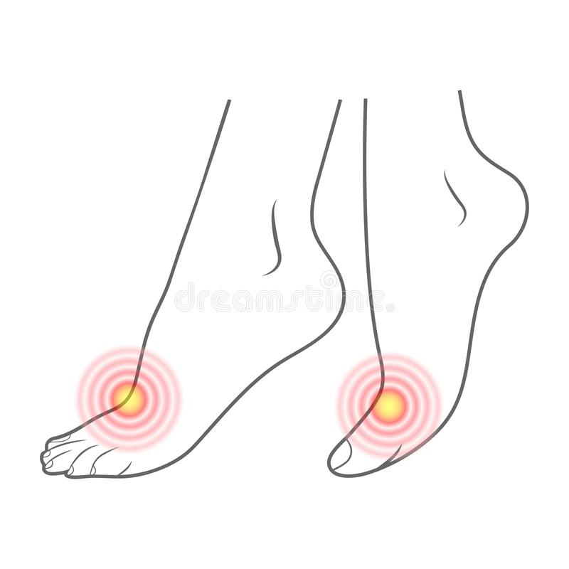 Ανθρώπινο περίγραμμα ποδιών και κόκκινα σημεία του πόνου Έτοιμο στοιχείο για την ιατρική και την ορθοπεδική που απομονώνονται σε  ελεύθερη απεικόνιση δικαιώματος