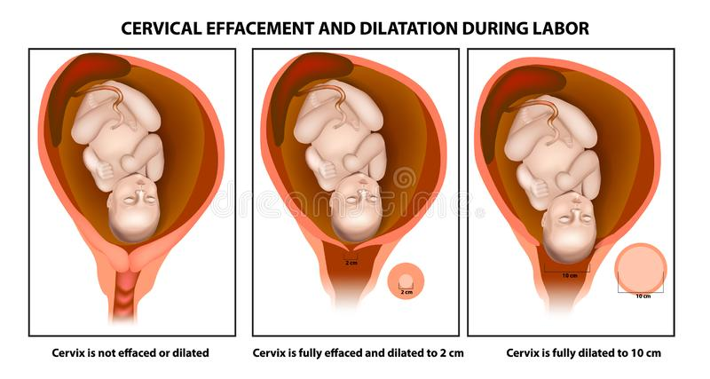 Αυχενικές effacement και θερμική μεταβολή διαστάσεων διανυσματική απεικόνιση