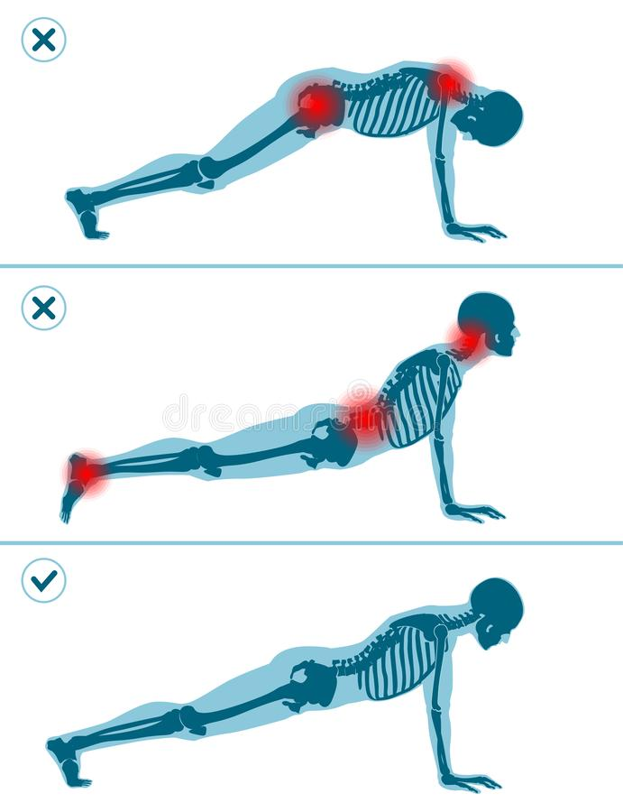 Η λανθασμένη και σωστή σανίδα θέτει Σωστή και λανθασμένη τεχνική εκτέλεσης αθλητικής άσκησης Κοινά λάθη στον αθλητισμό workout ελεύθερη απεικόνιση δικαιώματος
