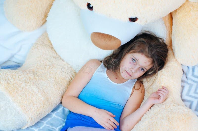 Κινηματογράφηση σε πρώτο πλάνο του χαριτωμένου λυπημένου μικρού κοριτσιού κοντά στη teddy αρκούδα Ιός Varicella ή Chickenpox αναφ στοκ φωτογραφίες