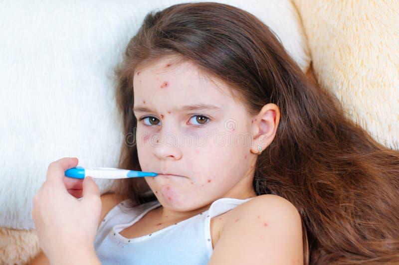 Κινηματογράφηση σε πρώτο πλάνο του χαριτωμένου λυπημένου μικρού κοριτσιού Ιός Varicella ή Chickenpox αναφυλαξία φυσαλίδων στο παι στοκ φωτογραφίες με δικαίωμα ελεύθερης χρήσης