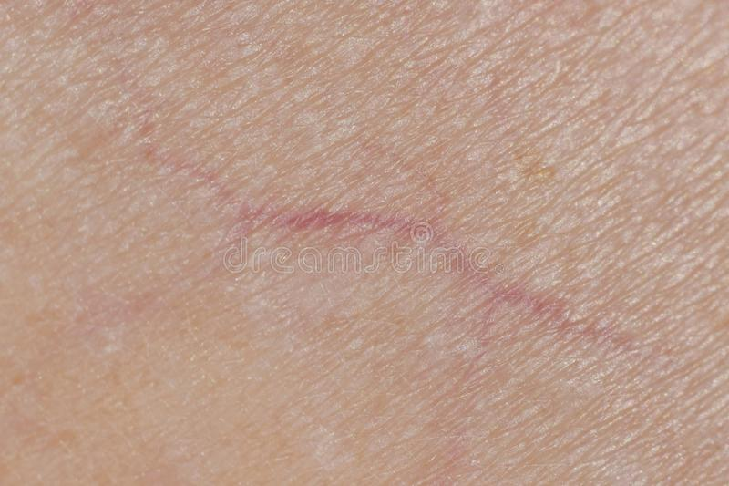 Μακρο φωτογραφία των φλεβών στο ανθρώπινο δέρμα, Microvarices στοκ εικόνα με δικαίωμα ελεύθερης χρήσης