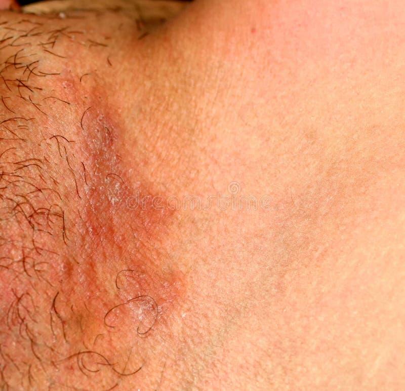 Μυκητιακή μόλυνση στο βουβώνα, ψωρίαση, δερματίτιδα, έκζεμα στοκ εικόνες