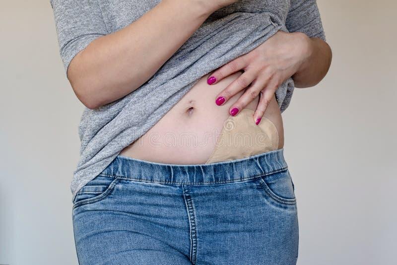 Μπροστινή άποψη σχετικά με τη σακούλα colostomy στο χρώμα δέρματος που συνδέεται με το νέο ασθενή γυναικών Κινηματογράφηση σε πρώ στοκ εικόνα με δικαίωμα ελεύθερης χρήσης