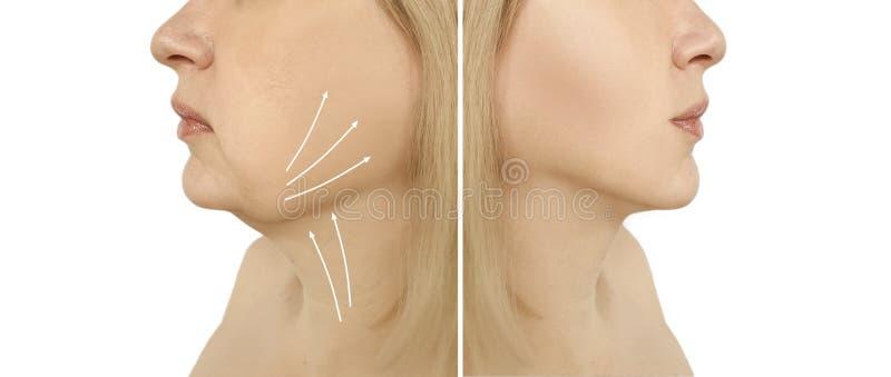 Διπλή σκλήρυνση λίφτινγκ πηγουνιών γυναικών πριν και μετά από τις ωοειδείς διαδικασίες κολάζ liposuction προβλήματος στοκ φωτογραφίες