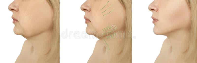 Διπλή σκλήρυνση λίφτινγκ πηγουνιών γυναικών πριν μετά από τις ωοειδείς διαδικασίες κολάζ liposuction προβλήματος στοκ φωτογραφίες με δικαίωμα ελεύθερης χρήσης