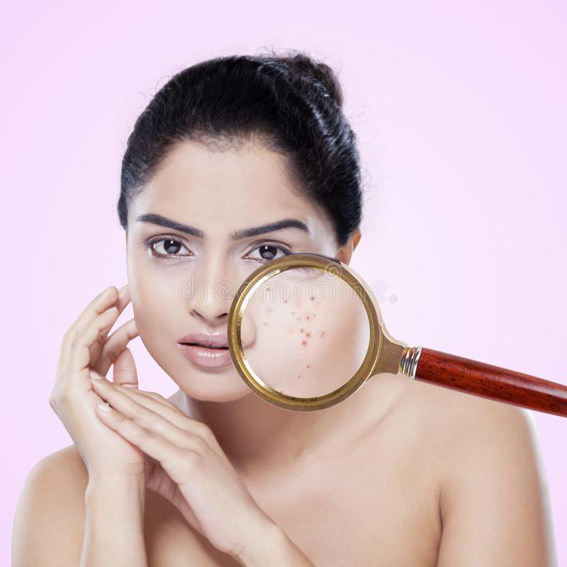 Όμορφη ινδική γυναίκα με το δέρμα ακμής στοκ εικόνα με δικαίωμα ελεύθερης χρήσης