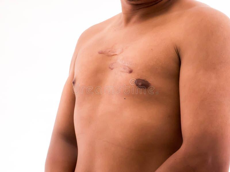 Σημάδι στο ανθρώπινο δέρμα, keloid στο στήθος στοκ φωτογραφίες