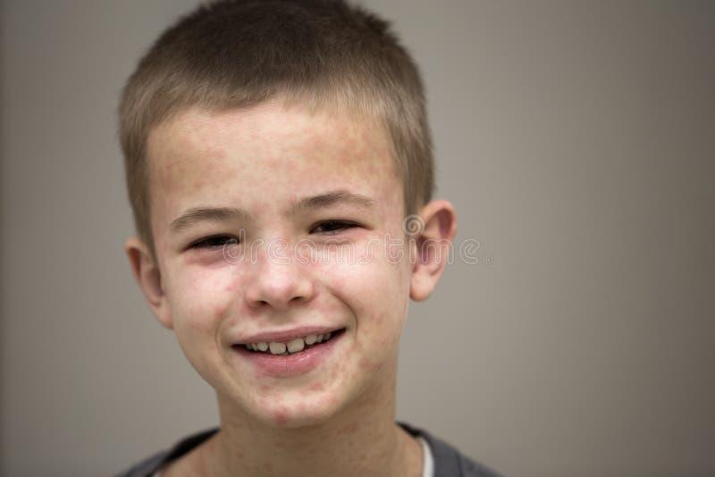 Το πορτρέτο του άρρωστου χαμογελώντας παιδιού αγοριών που πάσχει από την ιλαρά ή η φλυκταινώδης νόσος κοτόπουλου με τις προσκρούσ στοκ εικόνες