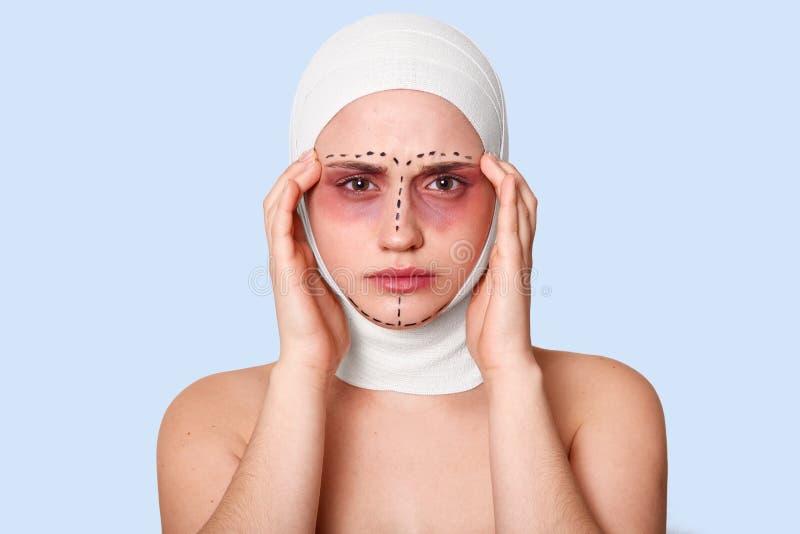 Φωτογραφία του κουρασμένου κοριτσιού στο μπλε υπόβαθρο Η γυναίκα με το μώλωπα γύρω από τα μάτια και τους επιδέσμους στο κεφάλι έχ στοκ φωτογραφία