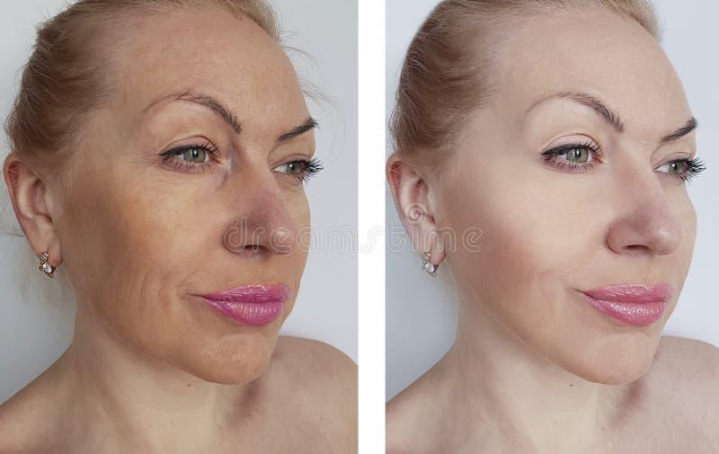 Πρόσωπο ρυτίδων γυναικών πριν και μετά από την ανύψωση των θεραπειών θεραπείας στοκ εικόνα