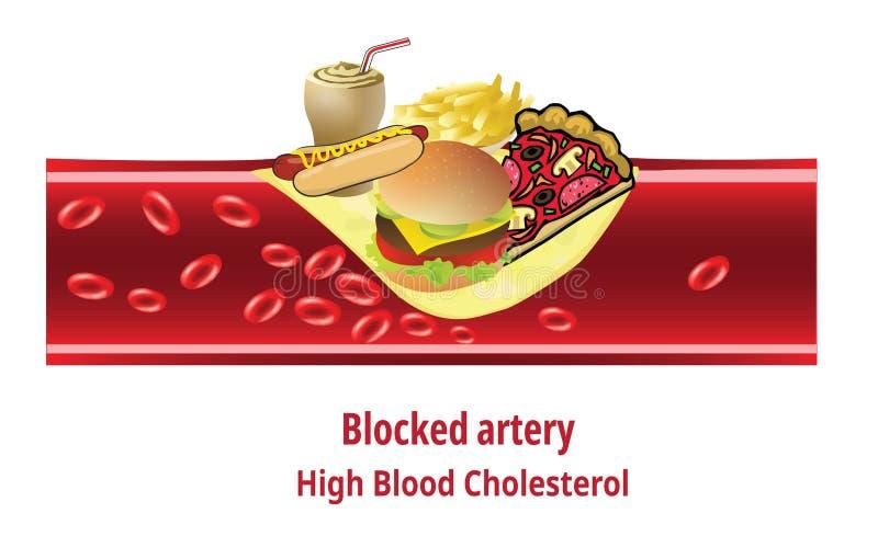 Высокий холестерол крови, высококалорийная вредная пища иллюстрация штока