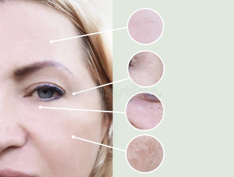 Женские морщинки перед и после коллажем процедурам по терапией beautician регенерации разнице в косметологии зрелым стоковые изображения rf