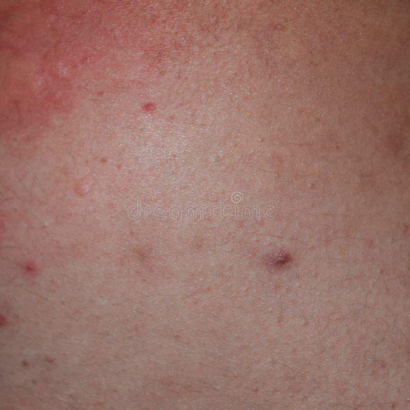 Задняя часть и стороны кожи аллергии Аллергические реакции на коже в форме запухания и стоковые фотографии rf