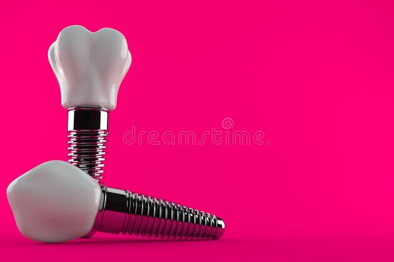 зубоврачебным белизна взгляда элементов изолированная implant бесплатная иллюстрация