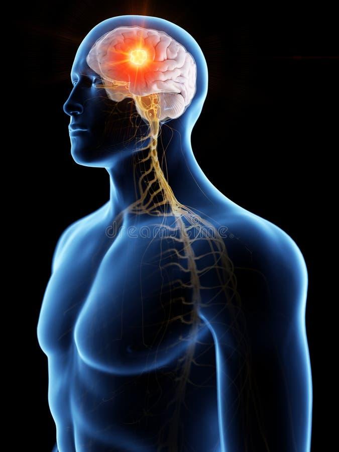 Карцинома мозга бесплатная иллюстрация