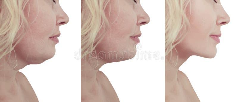 Красивый коллаж подмолаживания двойного подбородка женщины отвисший перед и после процедурами по липосакции стоковые изображения
