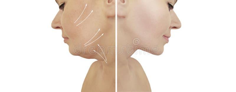 Красивый подъем двойного подбородка женщины перед и после процедурами по липосакции коррекции стоковая фотография rf