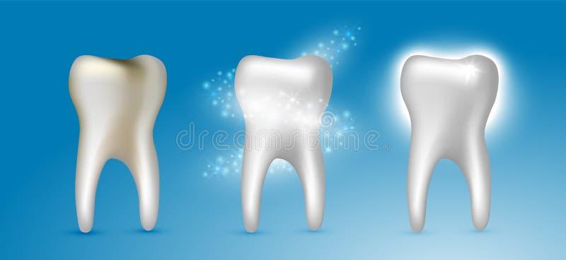 Красивый реалистический вектор дантиста установил процесса зубов очищая с разваленными, очищенными и белымися сияющими зубами на  иллюстрация штока