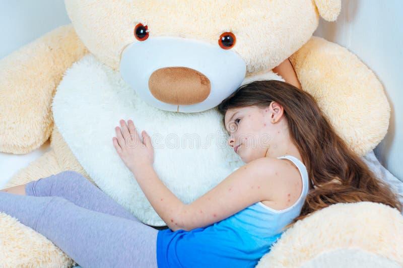 Крупный план милой грустной маленькой девочки около плюшевого мишки Вирус Varicella или пузырь ветряной оспы сыпь на ребенке стоковая фотография rf