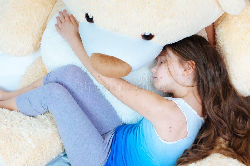 Крупный план милой грустной маленькой девочки около плюшевого мишки Вирус Varicella или пузырь ветряной оспы сыпь на ребенке стоковое фото