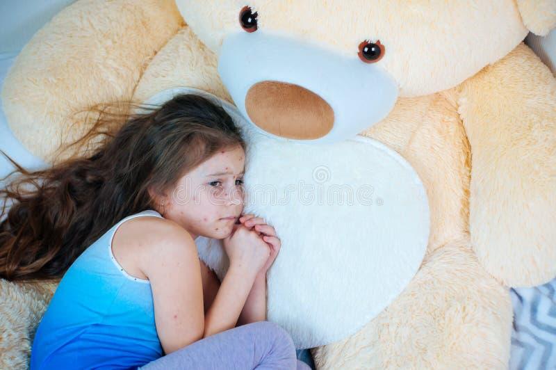 Крупный план милой грустной маленькой девочки около плюшевого мишки Вирус Varicella или пузырь ветряной оспы сыпь на ребенке стоковые изображения