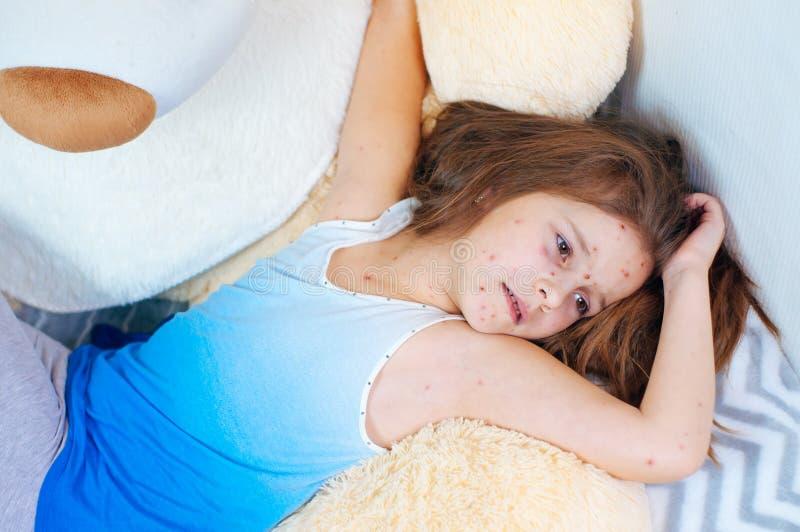 Крупный план милой грустной маленькой девочки около плюшевого мишки Вирус Varicella или пузырь ветряной оспы сыпь на ребенке стоковое изображение rf