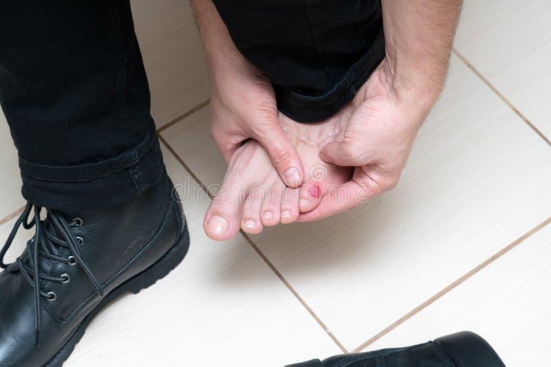 Кровопролитный ужасный волдырь на ногах человека с новыми черными кожаными ботинками кладя вокруг стоковое фото rf