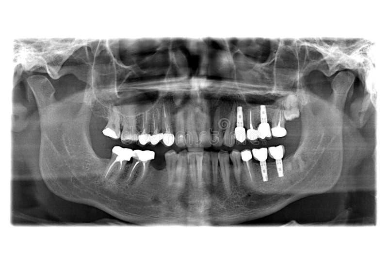 Луч x зубов стоковые изображения rf