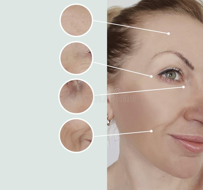 Морщинки женщины перед поднимаясь удалением заполнителя коллагена подмолаживания старея ретушируют процедуры по коллажа регенерац стоковые изображения rf