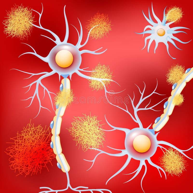 Нейроны в мозге с болезнью Альцгеймера, и амилоидоподобные металлические пластинкы бесплатная иллюстрация