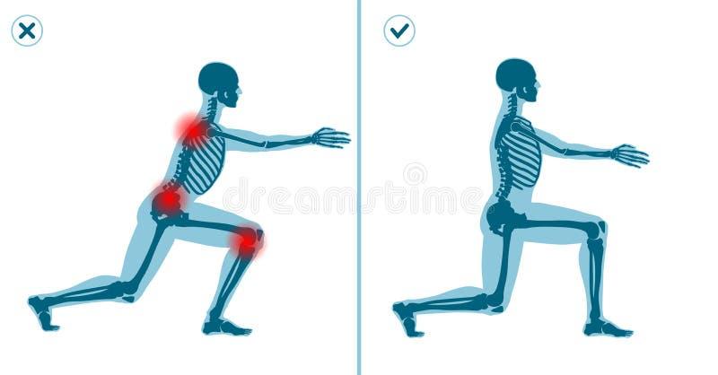 Неправда и правильные выпады работают Правый метод исполнения гимнастики спорта Частые ошибки в разминке спорта бесплатная иллюстрация