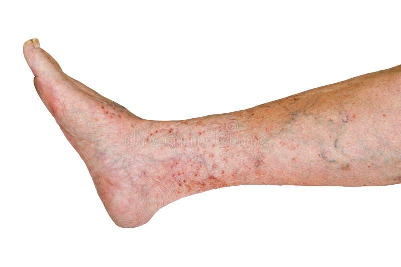 Нога с varicose заболеванием, varicose вены старухи изолированные на белой предпосылке стоковые фотографии rf