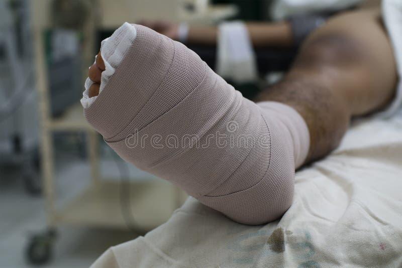 Пациент с зараженной диабетической ногой стоковая фотография rf