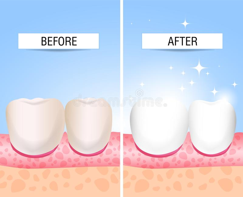 Her teeth sick and a healthy. Visual aid for students, dentists, clinic patients. Defeat is a source of destruction in the teeth. stock illustration