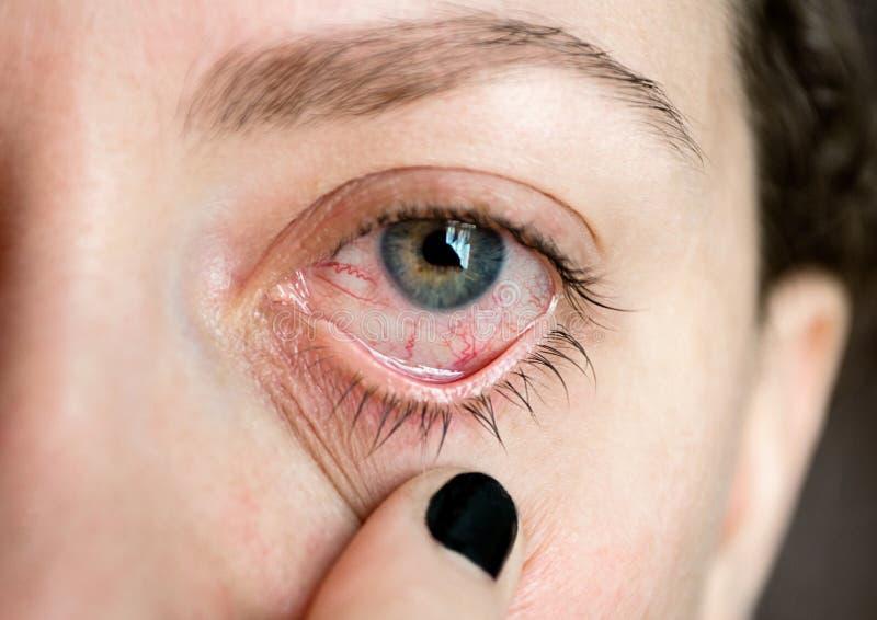Ð ¡ onjunctivitis pinkeye Kobiety ` s oko Oko choroba Zamykający up fotografia royalty free