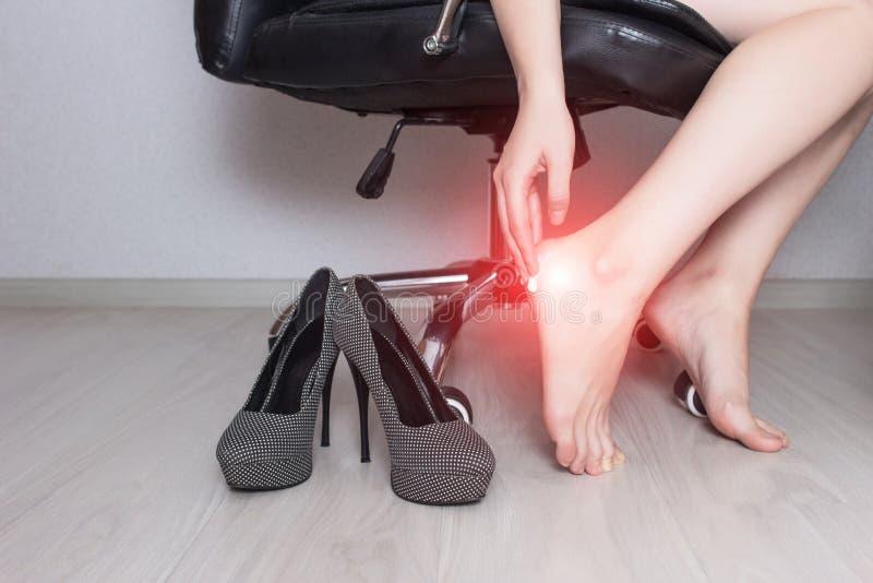 Девушка сидит в стуле офиса и мажет мазь ноги с медицинской мазью против грибковой инфекции, сливк стоковая фотография